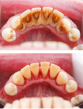 Find The Best orthodontic treatment in Delhi