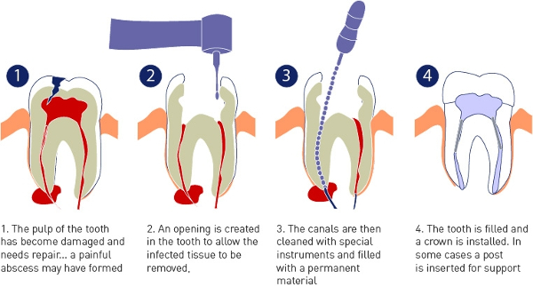 Painless Root Canal Treatment Specialist in Delhi